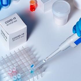test na koronawirusa SARS-CoV-2