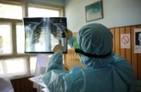 lekarz oglądający prześwietlenie płuc