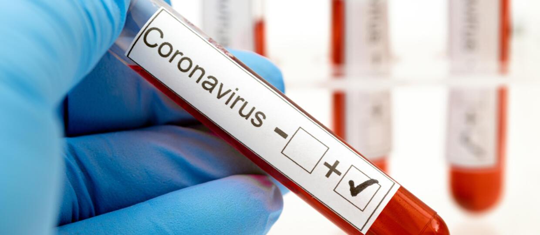 Raport Ministerstwa Zdrowia ws. koronawirusa - już ponad 500 osób zarażonych
