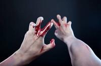 zakrwawione ręce - materiał poglądowy