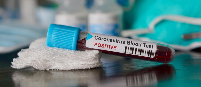 Szósta ofiara koronawirusa w Polsce. To 27-letnia kobieta [AKTUALIZACJA]