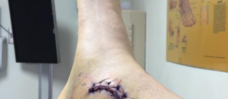 Wokalista Linkin Park pokazuje… nogę
