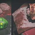 wymiana mózgu na sztuczny